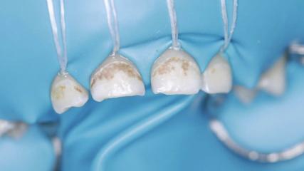 Лечение пульпитов в несформированных постоянных зубах