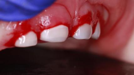 Лечение пульпитов молочных зубов