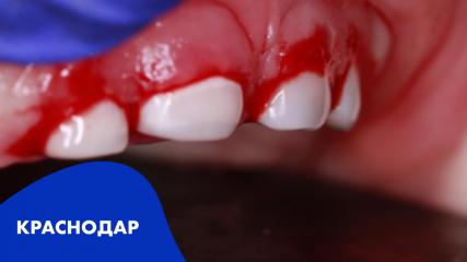 Методы лечения пульпита и периодонтита временных и постоянных несформированных зубов в практике детского стоматолога
