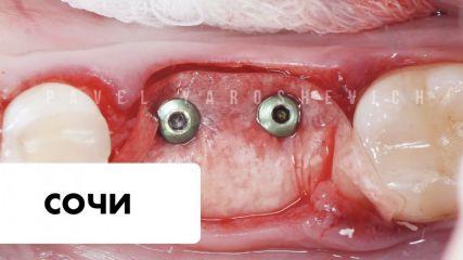 Протоколы костной и мягкотканной аугментации